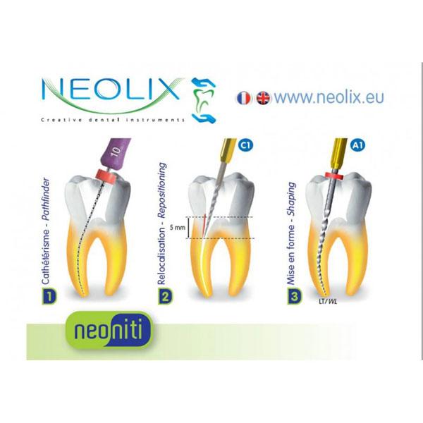 file-dẻo-nội-nha-neolix-pháp