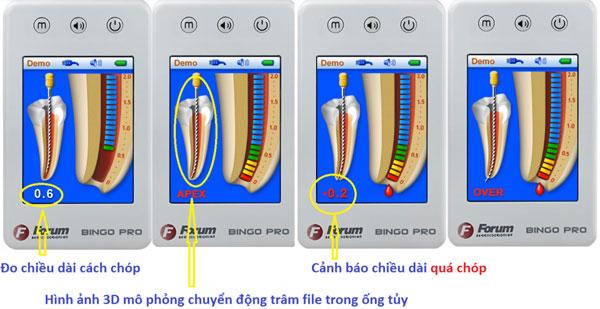 may-do-chieu-dai-ong-tuy-dinh-vi-chop-bingo-pro-1-1024x528