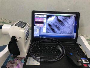 Sensor X Quang