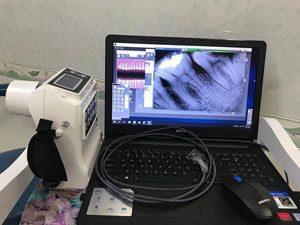 x-quang-sensor-hinh-dai-dien